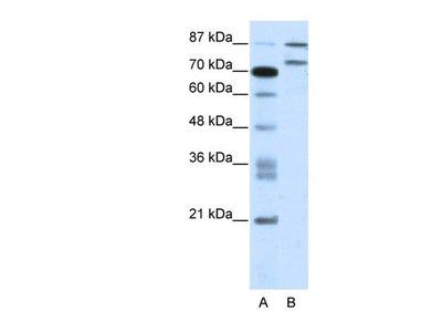 anti-ZNF709 Antibody