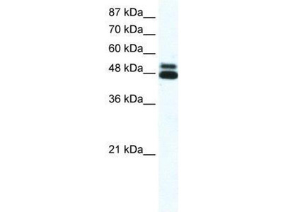 anti-Cholinergic Receptor, Nicotinic, beta 2 (Neuronal) (CHRNB2) (N-Term) antibody