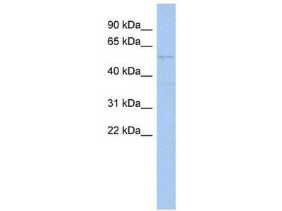 anti-SET and MYND domain containing 2a (smyd2a) antibody