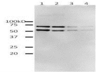 HIV-1 Reverse Transcriptase (HIV1RT) (Active) protein