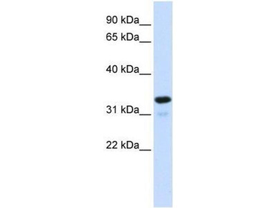 anti-Nuclear Factor of kappa Light Polypeptide Gene Enhancer in B-Cells Inhibitor, alpha (NFKBIA) (Middle Region) antibody