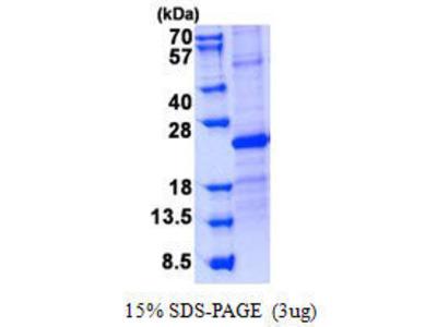 SOSTDC1 protein