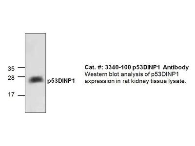 p53DINP1 Antibody