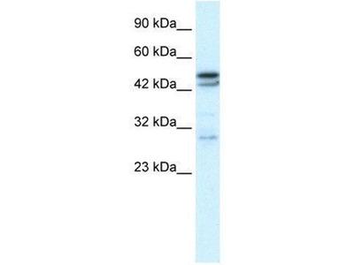 anti-CHRNA3 Antibody