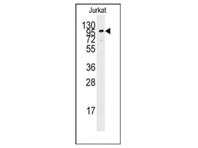 anti Adenylate cyclase type 2 (C-term)