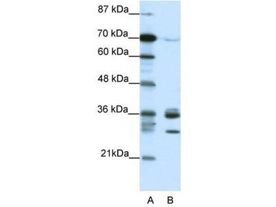 anti-CDK5 antibody