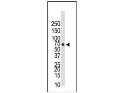 anti CDw293 / BMPR1B (C-term)