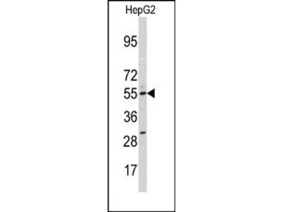 anti CYP11A1 (N-term)