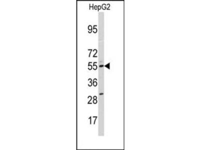 CYP11A1 (N-term) rabbit polyclonal antibody, Purified