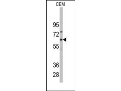 anti CYP1B1