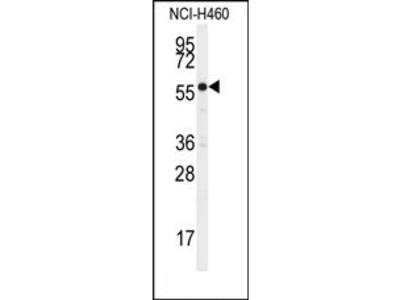 anti CYP21A2 (N-term)