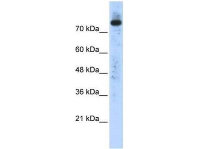 anti-PLD2 antibody