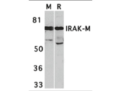 IRAK-M Antibody