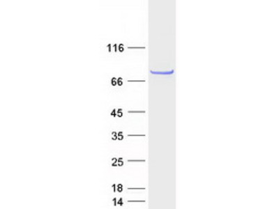 C6orf97 (CCDC170) (NM_025059) Human Recombinant Protein