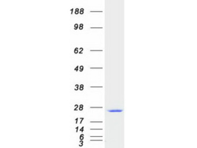 SAR1 (SAR1A) (NM_020150) Human Recombinant Protein