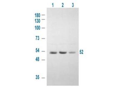 GSK3 Alpha phospho S21 Antibody