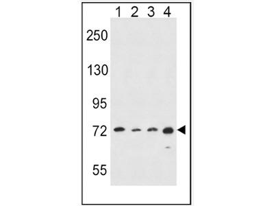 anti ALOX15 / LOG15 (C-term)