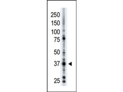 anti CD296 / ART1 (N-term)