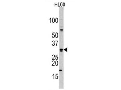 anti CDCA8 / Borealin