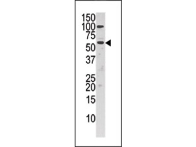 anti Choline kinase alpha (C-term)