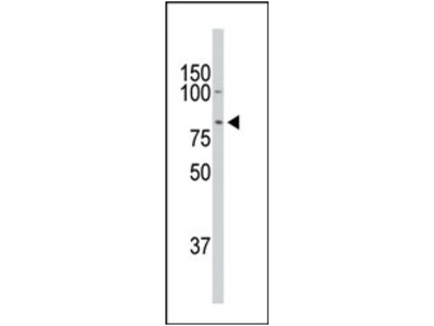 anti Doublecortin-like kinase 1 (C-term)