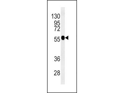 TUBB3 Antibody (N-term)