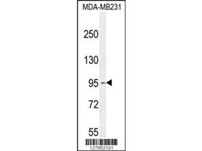 KCNT2 Antibody (C-term)
