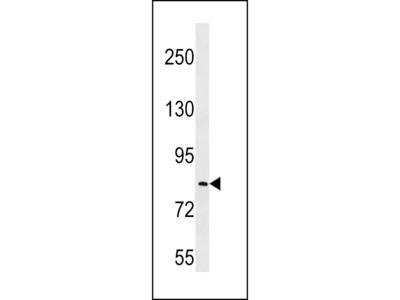 LRRC70 Antibody (C-term)