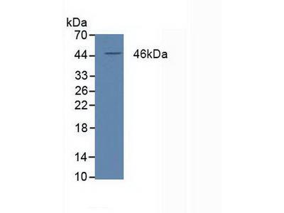 Polyclonal Antibody to Peroxisome Proliferator Activated Receptor Delta (PPARd)