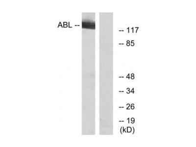 cAbl antibody