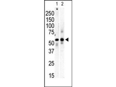 PI 4 Kinase type 2 beta antibody (C-term)