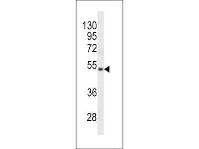 KRT72 Antibody (Center)