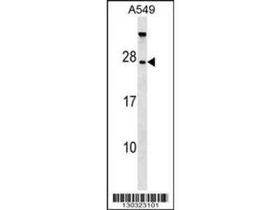 TBC1D28 Antibody (Center)
