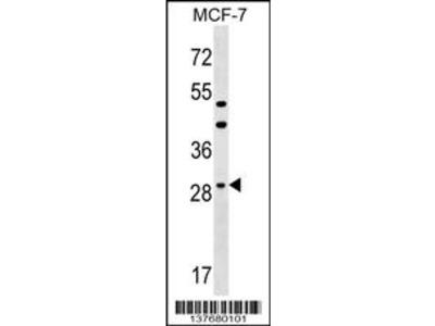 DHRS11 Antibody (Center)