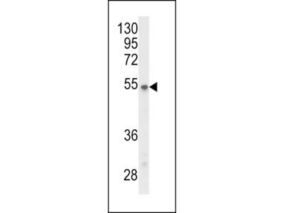 P2R3C Antibody (N-term)