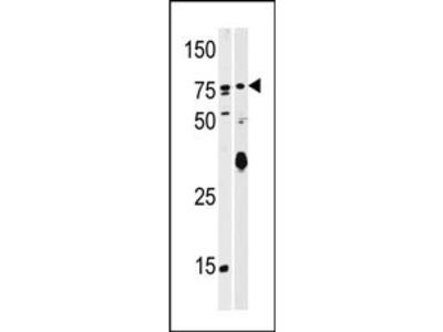 SCYL2 Antibody (C-term)