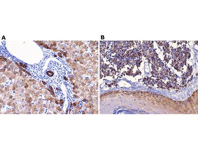 Anti - Cytokeratin 18