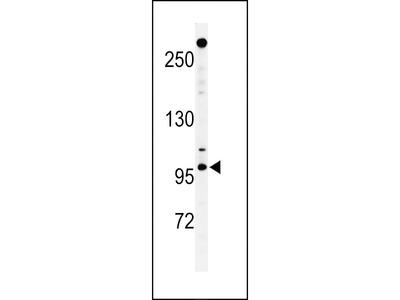 NUP210 Antibody (N-term)