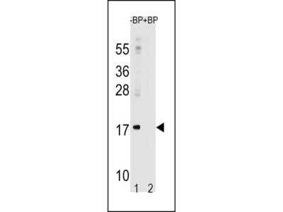 LC3 Antibody (APG8A) (N-term)
