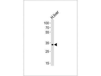 LRTOMT Antibody (N-term)