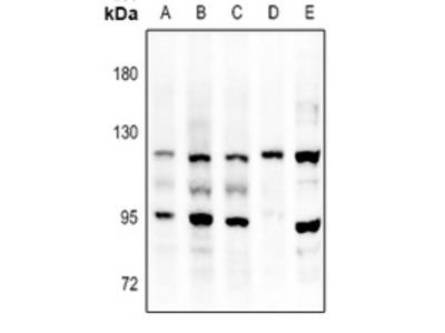 Anti-FGFR3 Antibody