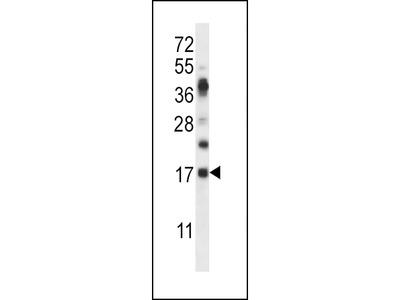 RNASE6 Antibody (C-term)