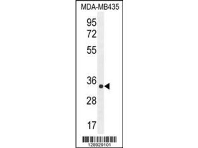 ALKBH6 Antibody (Center)