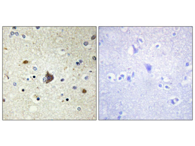 Collagen IV alpha 3 antibody