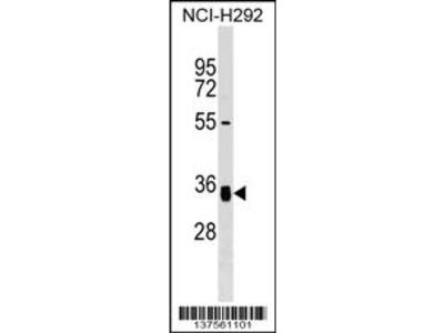 GNPTG Antibody (C-term)