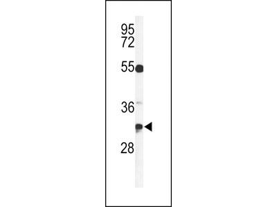 TSPAN7 Antibody (Center)