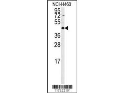 RMND5B Antibody (C-term)