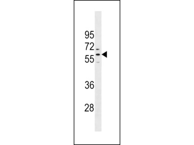 PRAMEF1 Antibody (C-term)