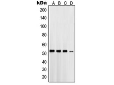Anti-Presenilin 1 Antibody