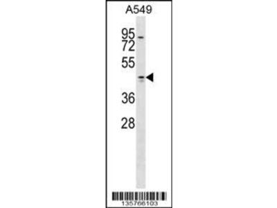 TMOD1 Antibody (Center)
